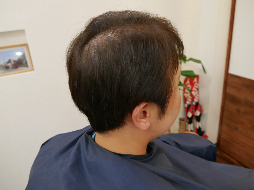 脱毛後の縮毛矯正